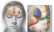 Cứu sống bệnh nhân bị dị dạng mạch máu não