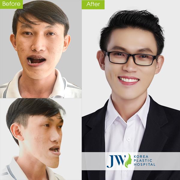 Thạc sĩ xe ôm Duy Phương là một trong những trường hợp lột xác thành công sau khi được ứng dụng công nghệ thẩm mỹ răng hàm mặt 4.0.