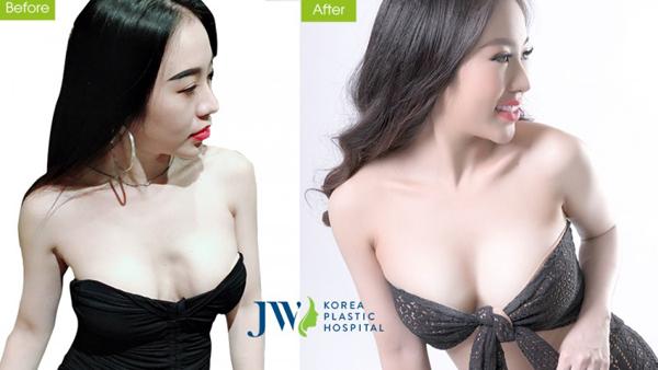 DJ Nhung Babie sở hữu vòng một gợi cảm sau nâng ngực Nano Chip giọt nước 4.0.