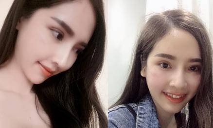 Các phương pháp thẩm mỹ cô gái 23 tuổi thực hiện để gương mặt 'baby'