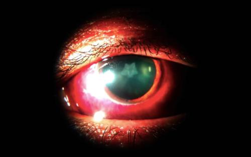 Vết đục hình ngôi sao trong mắt người đàn ông Ấn Độ. Ảnh: BMJ.