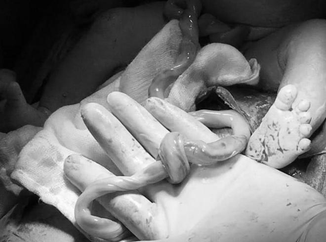 Bé trai chào đời với vòng dây rốn thắt nút. Ảnh bác sĩ cung cấp.