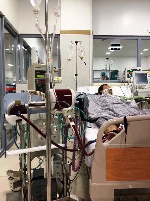 Bệnh nhân được ECMO tại Khoa hồi sức tích cực Bệnh viện Bạch Mai. Ảnh: Bệnh viện cung cấp.