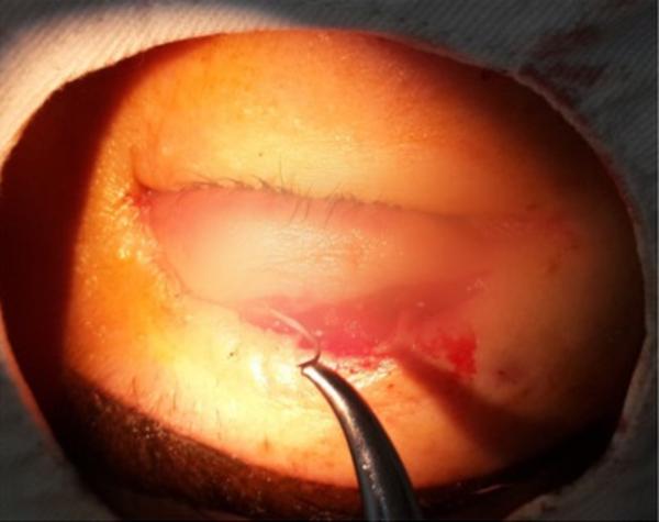 Hình ảnh kim gẫy trong mắt bệnh nhân sau phẫu thuật tạo mí mắt. Ảnh: Bệnh viện cung cấp