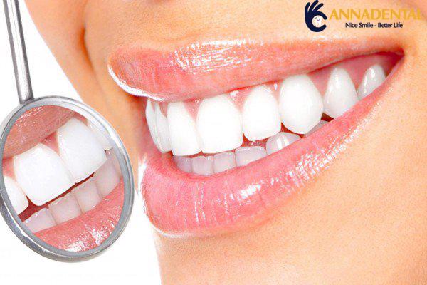 Bọc răng sứ thẩm mỹ  Giải pháp phục hình răng được rất nhiều nhiều khách hàng ưa chuộng hiện nay.