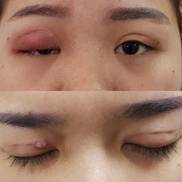 Mí mắt bệnh nhân bị biến chứng sau khi cắt mí tại một cơ sở làm đẹp, Ảnh: Bệnh viện cung cấp.