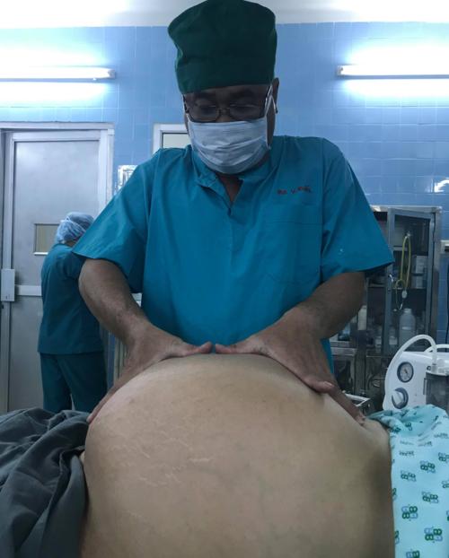 Khối u nặng hơn 20 kg khiến bụng bệnh nhân to bất thường. Ảnh bác sĩ cung cấp.
