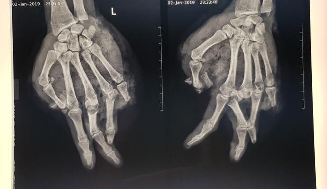 Kết quả chụp Xquang bàn tay của bệnh nhân. Ảnh: Bệnh viện cung cấp.