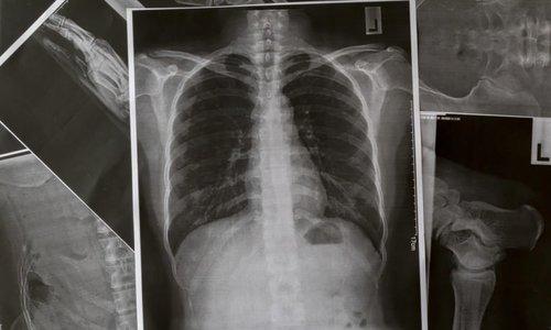 Dấu hiệu cảnh báo bệnh thuyên tắc phổi
