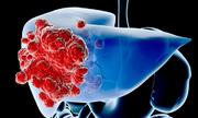 Ung thư gan tấn công đàn ông nhiều hơn phụ nữ