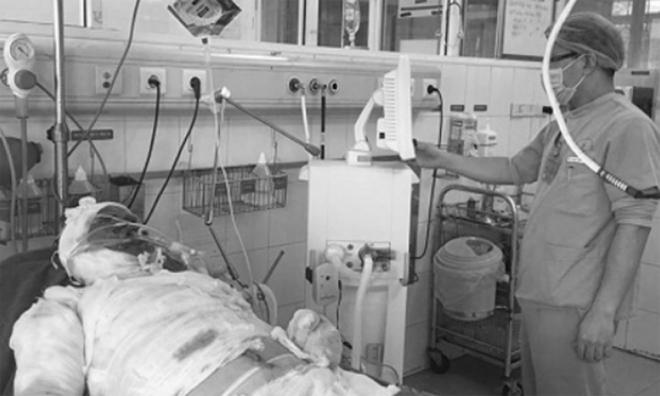 Bệnh nhân đangđược chăm sóc và theo dõi tại Viện Bỏng Quốc gia. Ảnh do bệnh viện cung cấp.