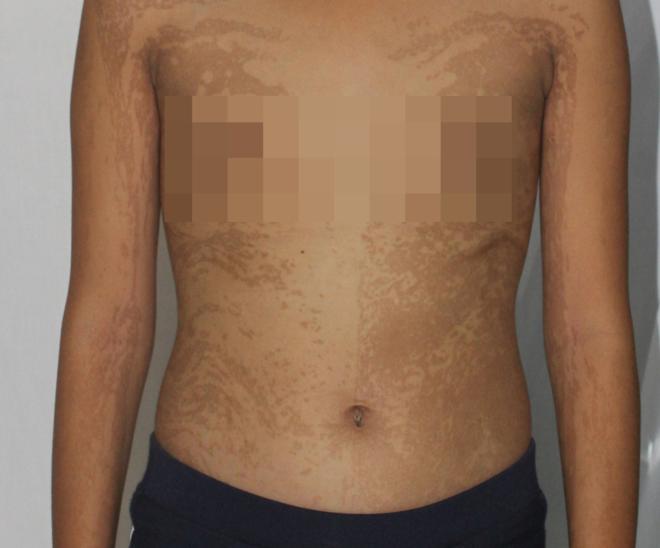 Các mảng da màu nâu đen khắp thân mình bệnh nhi. Ảnh: Bệnh viện cung cấp