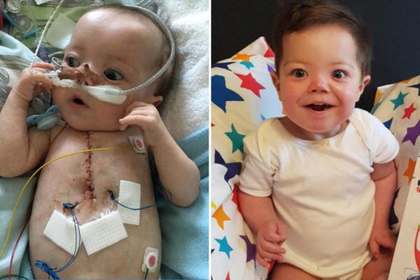 Cậu bé Fry trước và sau khi phẫu thuật. Ảnh: The Sun