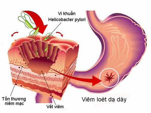 Những nguyên nhân khiến bệnh đau dạ dày dễ tái phát - 1