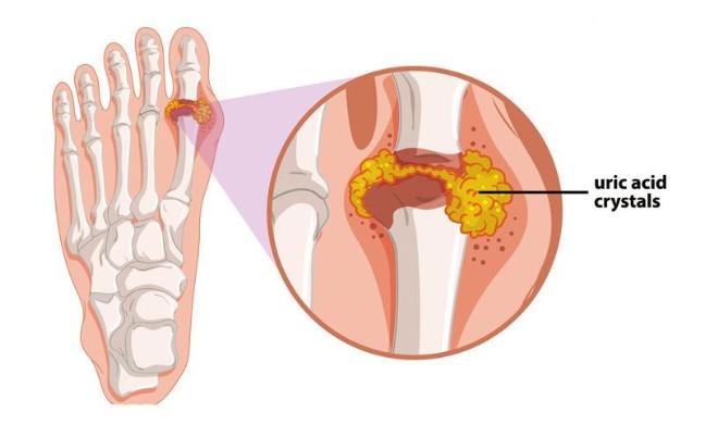 Gout là quá trình lắng đọng tinh thể urat ở các khớp xương.