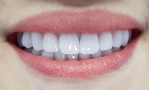Kết quả hình ảnh cho Bí quyết để có hàm răng sứ bền đẹp