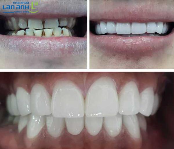 Ca phục hình răng sứ Cercon XT tại Nha Khoa Lan Anh.