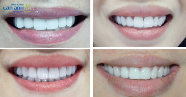 Không phải tất cả trường hợp làm răng sứ đều cho kết quả giống nhau.