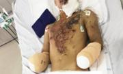 Thanh niên cụt hai bàn tay vì chế pháo nổ