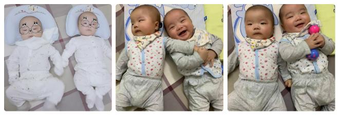 Hai em bé Gia Minh và Gia Thành là thành quả của quá trìnhchạy chữa biến chứng quai bị và niêm mạc dày, ít trứng bẩm sinh.
