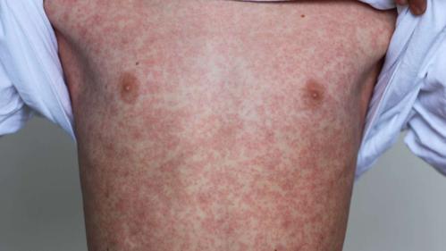 Cơ thể một bệnh nhi bị sởi. Ảnh: Shutterstock.
