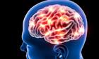 Huyết áp cao có thể làm thu nhỏ não người trẻ