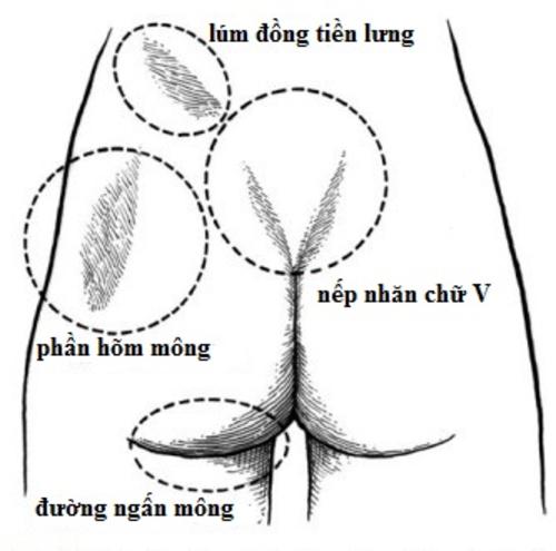 Phụ nữ sở hữu bốn đặc điểm nàycủa mông được đánh giá có vòng balý tưởng. Ảnh: Better Butt Challenge