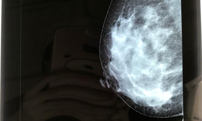 Phim chụp vú phát hiện khối u của bệnh nhân. Ảnh: Hà Trần.