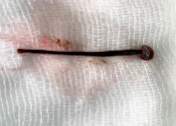 Con đỉa được gắp ra khỏi mũi của bệnh nhân. Ảnh: Bệnh viện cung cấp.