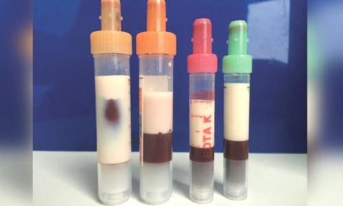 Mẫu máu từ cơ thể bệnh nhân 39 tuổi có màu trắng như sữa. Ảnh: Annals of Internal Medicine.