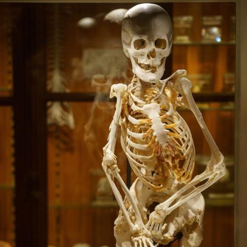 Bộ xương của Carol Orzel được trưng bày tại Bảo tàng Mütter. Ảnh: Instagram.