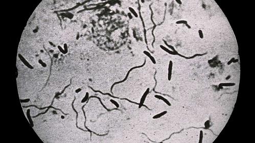 Vi khuẩn Bacillus trong trạng thái xác sống. Ảnh: IFL.