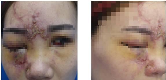 Cô gái bị mất thị lực do tắc động mạch mắt sau tiêm filler. Ảnh: L.V