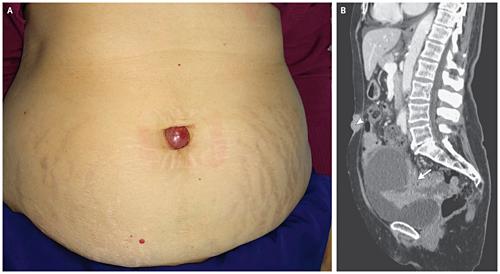 Cục hạch sưng đỏ trong rốn người phụ nữ 73 tuổi là dấu hiệu ung thư. Ảnh: nejm.