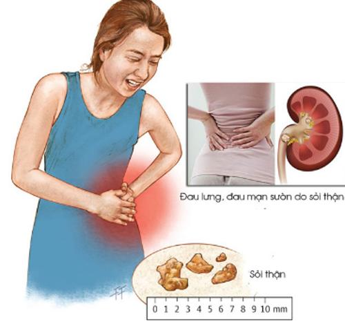 Triệu chứng của sỏi thận đa dạng nhưng phổ biến là đau thắt lưng âm ỉ lưng, mạn sườn.