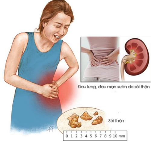 Người sỏi thận, nếu không được chẩn đoán và điều trị sớm sẽ dẫn đến biến chứng viêm bàng quang bởi sỏi to làm tổn thương niêm mạc bàng quang.