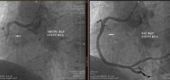 Mạch vành của bệnh nhân trước và sau khi đặt stent.
