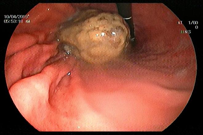 Khối bã nghệ trong dạ dày người bệnh. Ảnh: Nguyễn Mai.