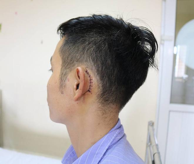Bệnh nhân được vá màng nhĩ sau khi tổn thương do điện thoại nổ. Ảnh: Bệnh viện cung cấp.