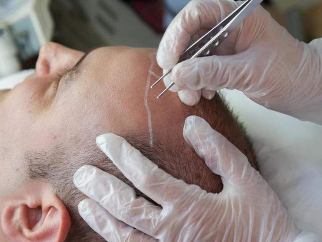 Nhiều nam giới bị hói sử dụng dịch vụ cấy tóc. Ảnh: Independent.