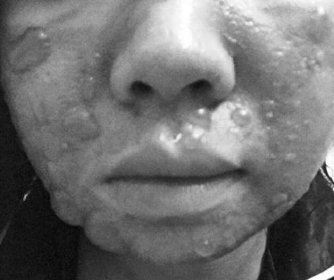 Cô gái bị bỏng do tự lột da tại nhà. Ảnh: T.L