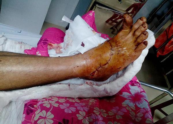 Ngón chân của bệnh nhân cử động nhẹ. Ảnh: Bửu Thuyên.