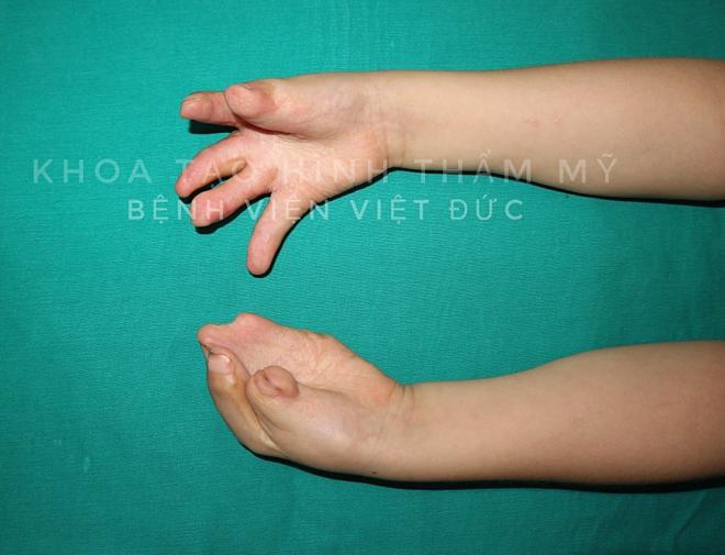 Bệnh nhi chuẩn bị được phẫu thuật tách các ngón tay đình liền. Ảnh: Bệnh viện cung cấp.