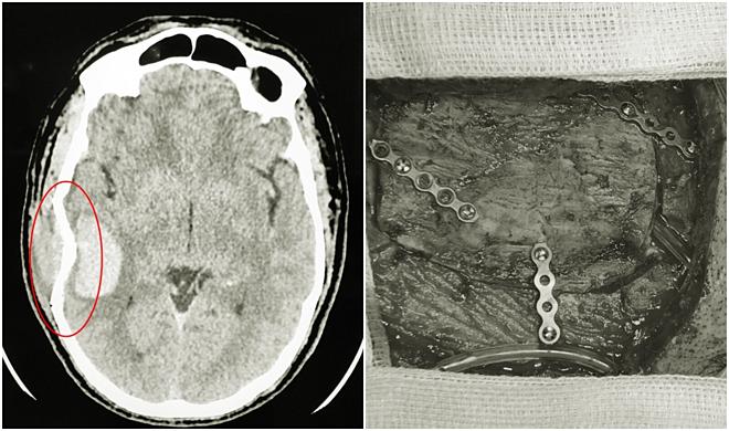 Hình ảnh sọ não bị lún vỡ được các bác sĩ phẫu thuật nẹp vít tạo hình lại hộp sọ. Ảnh: Hà Trang.
