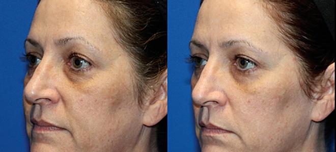 Hình ảnh trước và sau 1 tháng điều trị 2 lần với Tempsure Envi.