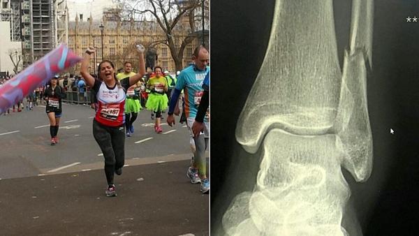 Phần xương mắt cá chân của cô gái đã bị gãy. Ảnh: Foxnews