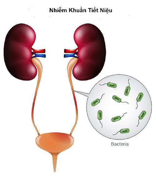 Khi bị viêm đường tiết niệu, bạn thường sẽ thấy bị đái buốt, đái rắt, nước tiểu có màu hồng hoặc đỏ hoặc nâu, có mủ.