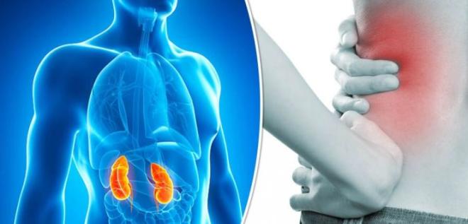 Sỏi tiết niệu có thể gây đau ở nhiều vị trí nhưvùng hông, thắt lưng.
