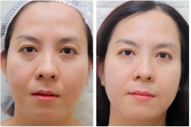 Hình ảnh trước và sau trị liệu với Tempsure Envi.