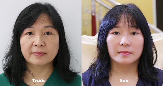 Sự thay đổi rõ nét trên khuôn mặt của khách hàngtrước và sau khi căng damặt bằng chỉ không tiêu của Mỹ.